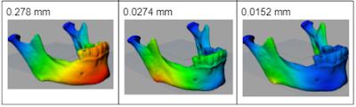 Mecánica estructural para cirugía de reconstrucción mandibular